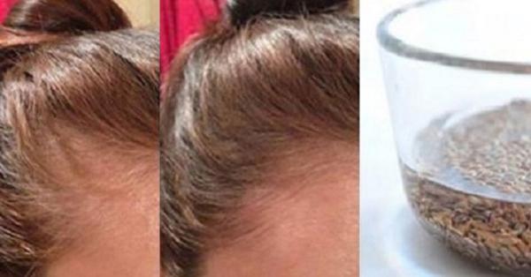 Вот как применять льняные семена, чтобы избавиться от выпадения волос, перхоти и сделать волосы сильными и блестящими!