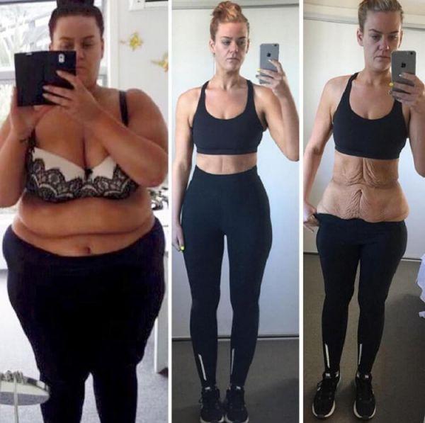 Последствия похудения на 50 килограмм